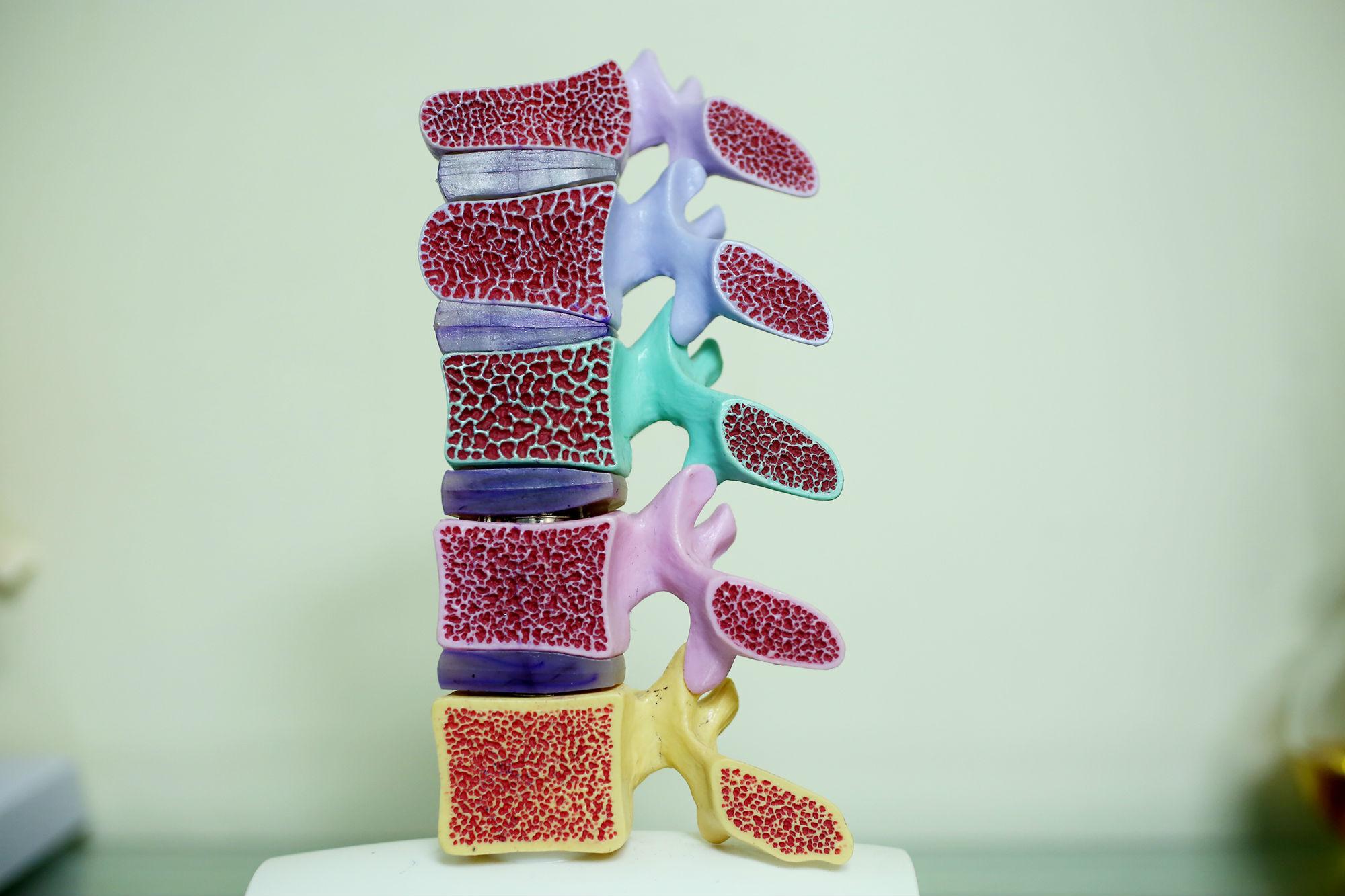 Avance de la osteoporosis en el hueso