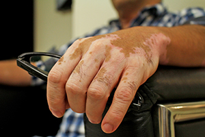 Hospital Universitario duplicará atención de pacientes con vitíligo